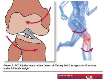 ACL What? Why? and How?